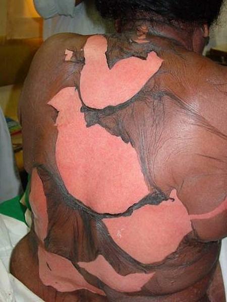 La tache de pigment chez les nourrissons